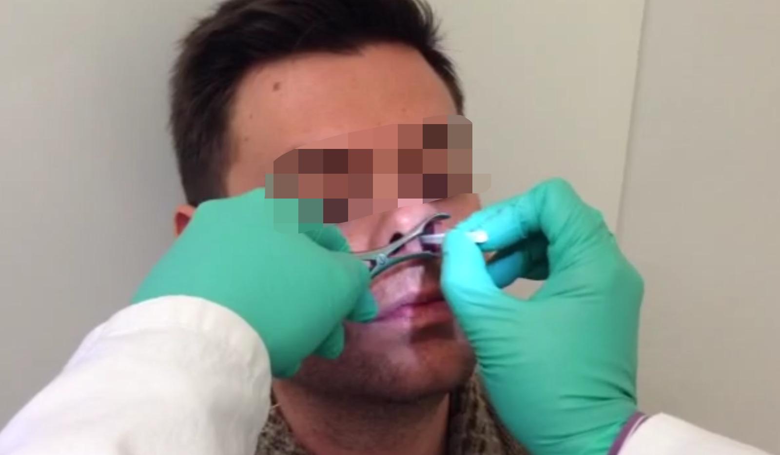 Prelievo Nasal Scraping Citologia Nasale