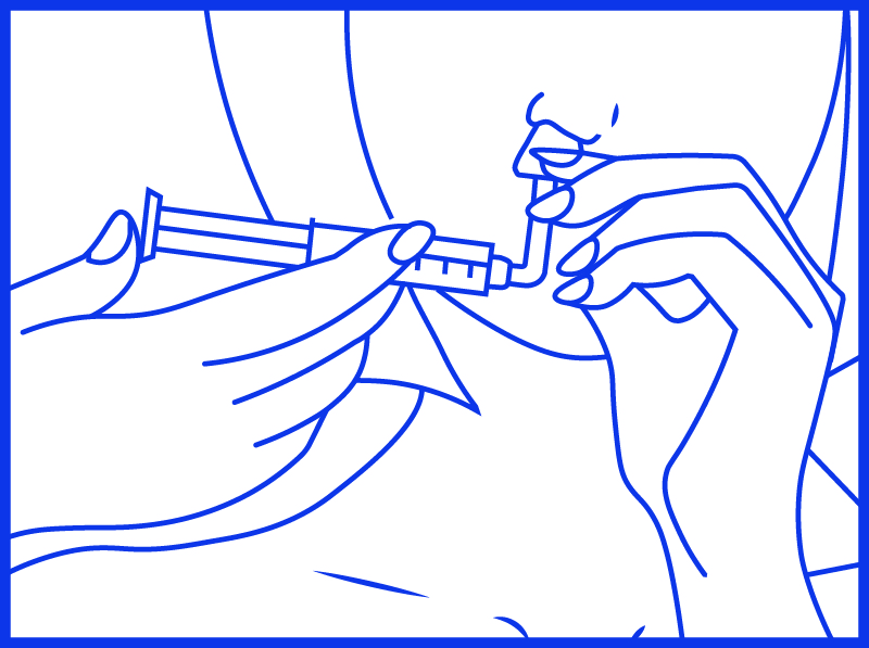 Istruzioni Nasir Rapid irrigazione nasale